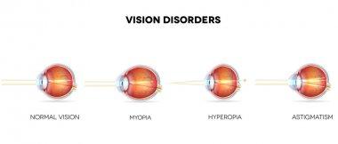 Eyesight disorders
