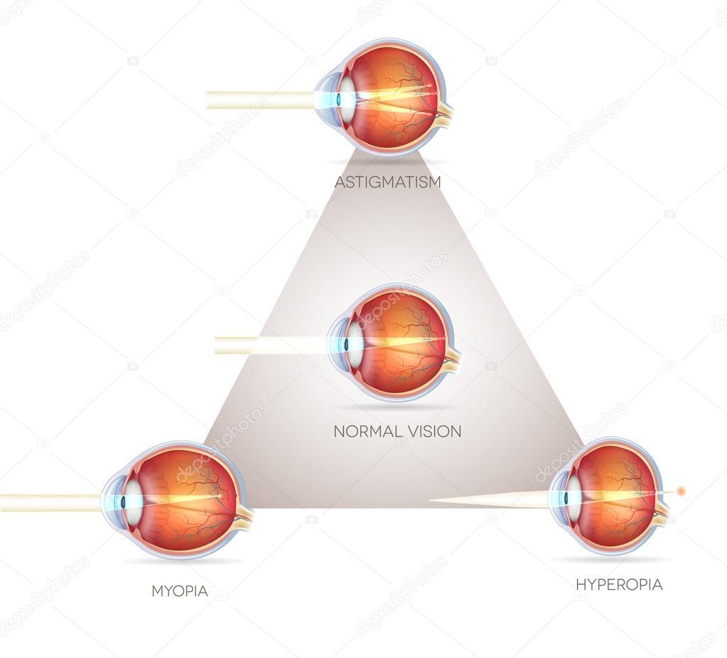 Triángulo de visión del ojo — Vector de stock © megija #70577517
