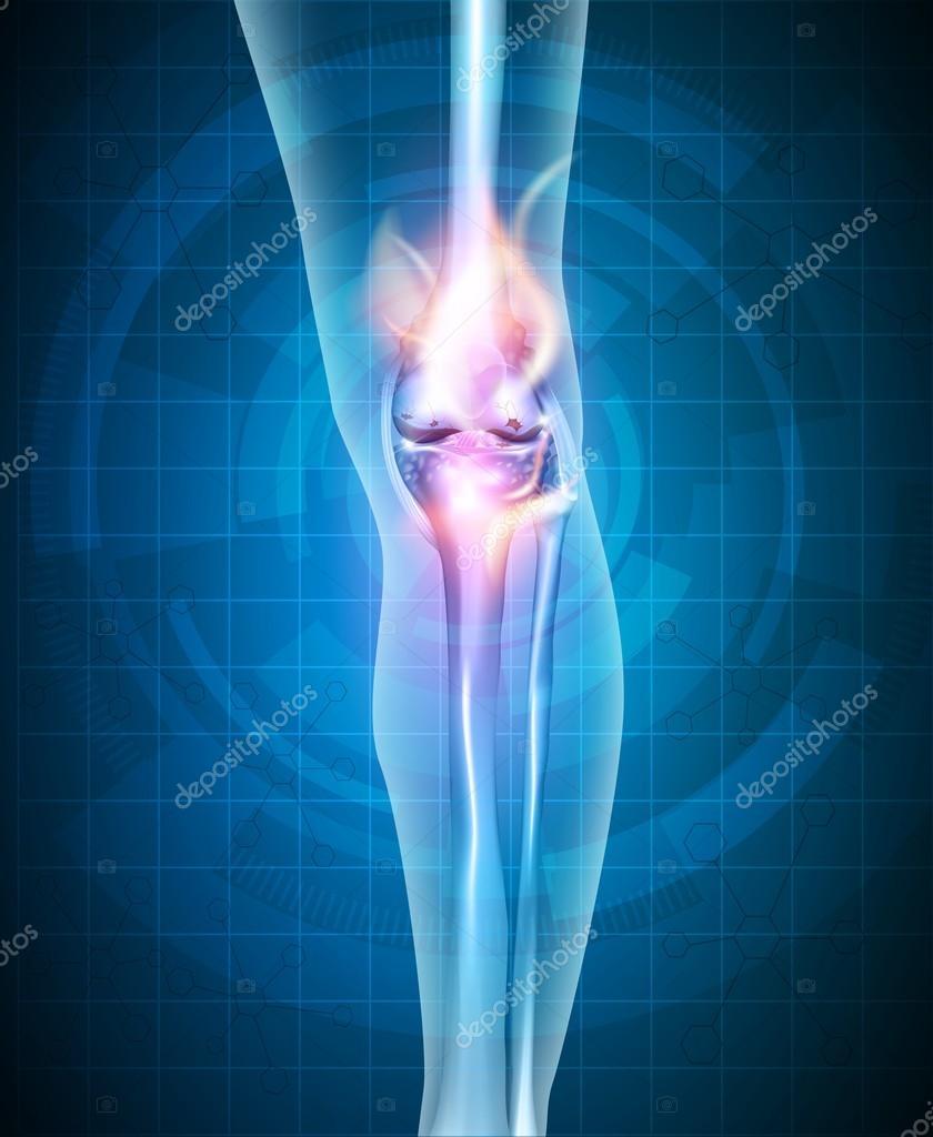 Anatomía de articulación sinovial normal — Archivo Imágenes ...
