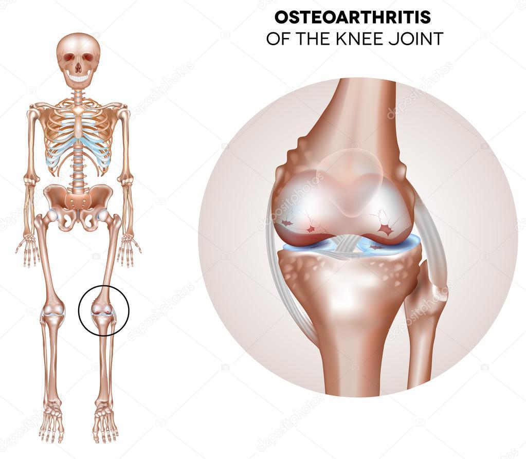 Arthritis der das Kniegelenk — Stockvektor © megija #73547705