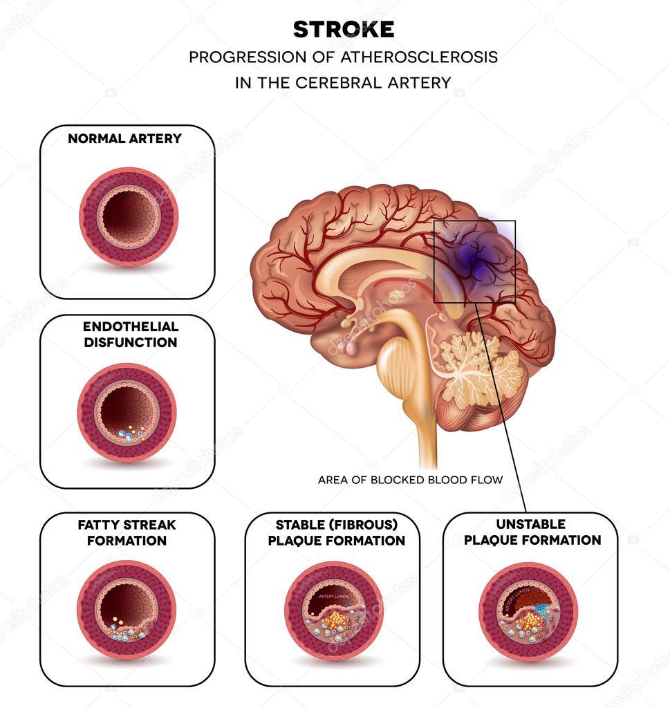 Stroke in the brain artery — Stock Vector © megija #86283222
