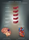 Artéria-betegség, érelmeszesedés, Stroke és szívroham