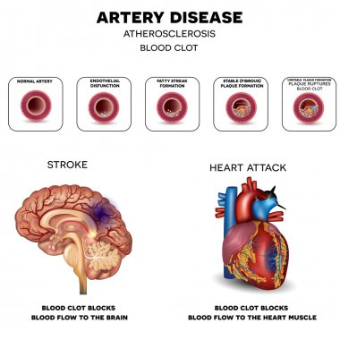 Artery disease, Atherosclerosis, Stroke and Heart attack