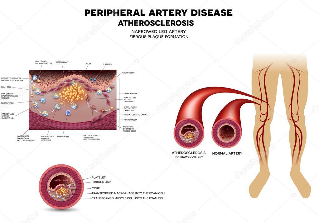 Bein Arterie Krankheit, Atherosklerose — Stockvektor © megija #86559216