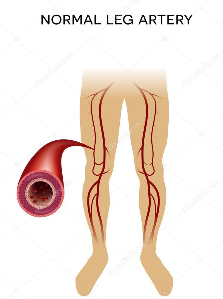 Gesundes Bein Arterie — Stockvektor © megija #86559400