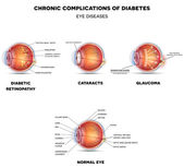 Fotografie Diabetic Eye Diseases