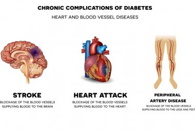 Chronic complications of Diabetes. Heart and blood vessel diseas