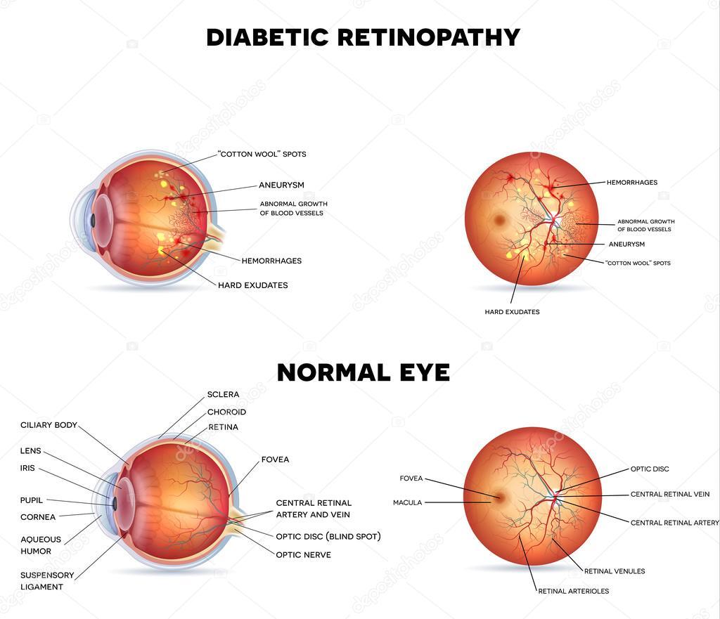 La retinopatía diabética y ojo normal — Archivo Imágenes Vectoriales ...