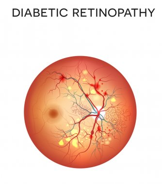 Diabetic retinopathy eye disease