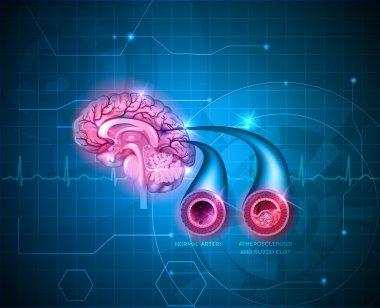 Human brain healt care