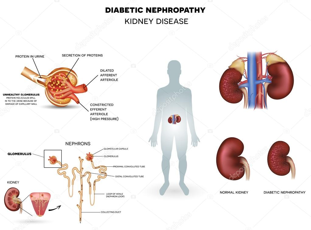 taking a look at nephropathy The symptoms of analgesic nephropathy may look like other medical conditions or problems always consult your health care provider for a diagnosis.