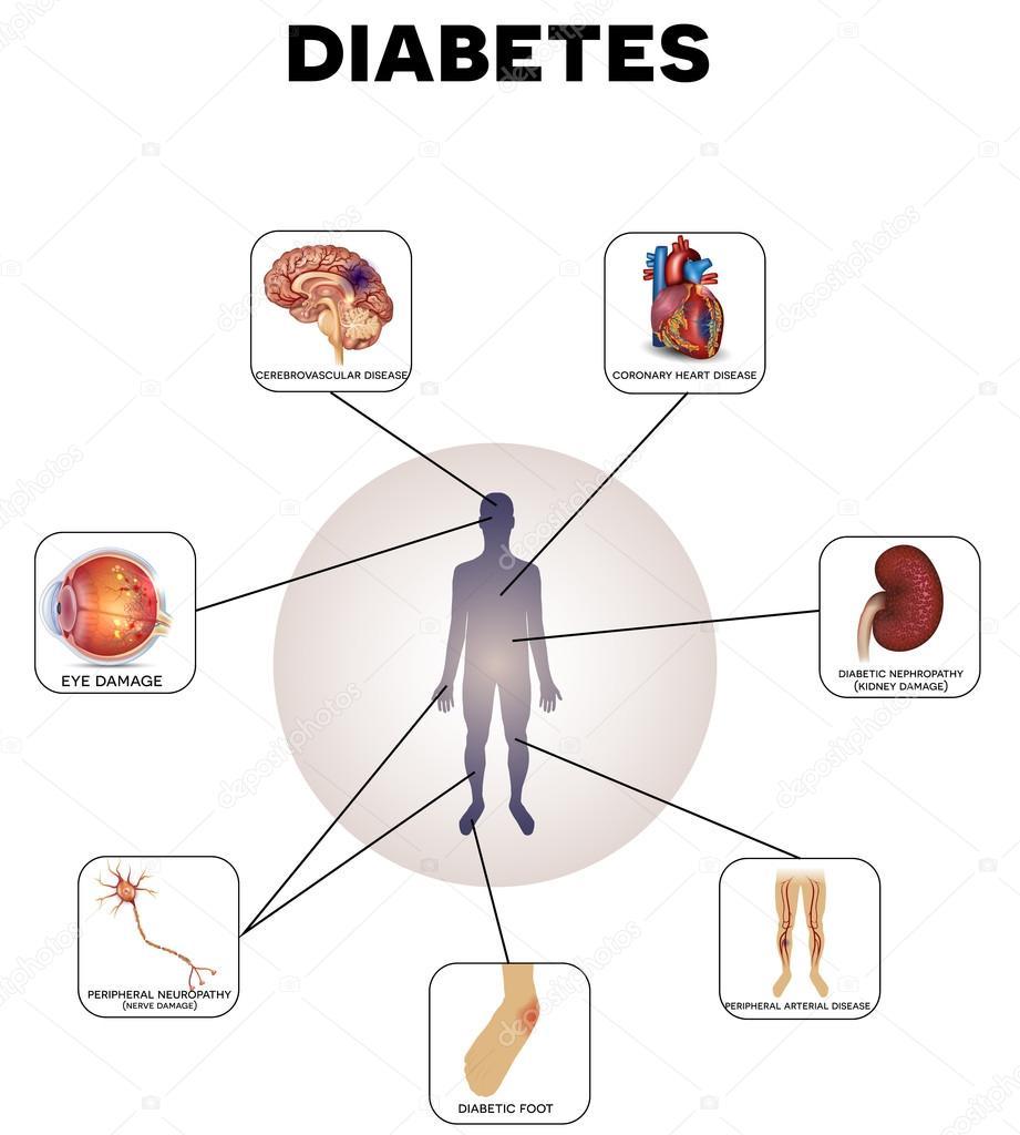 Diabetes komplikationer information grafik — Stock Vektor