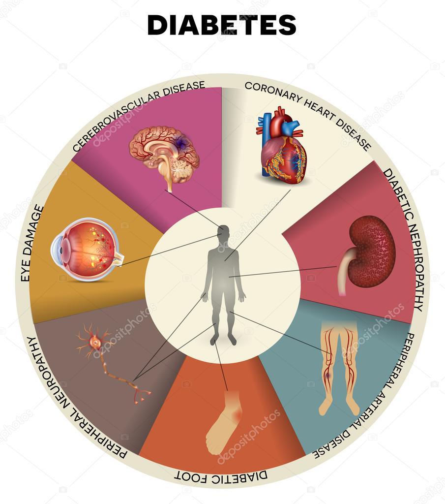 Diabetes Mellitus Affected Organs Stock Vector 169 Megija