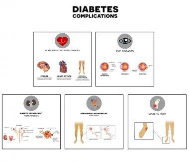 Diabetes complications info graphic
