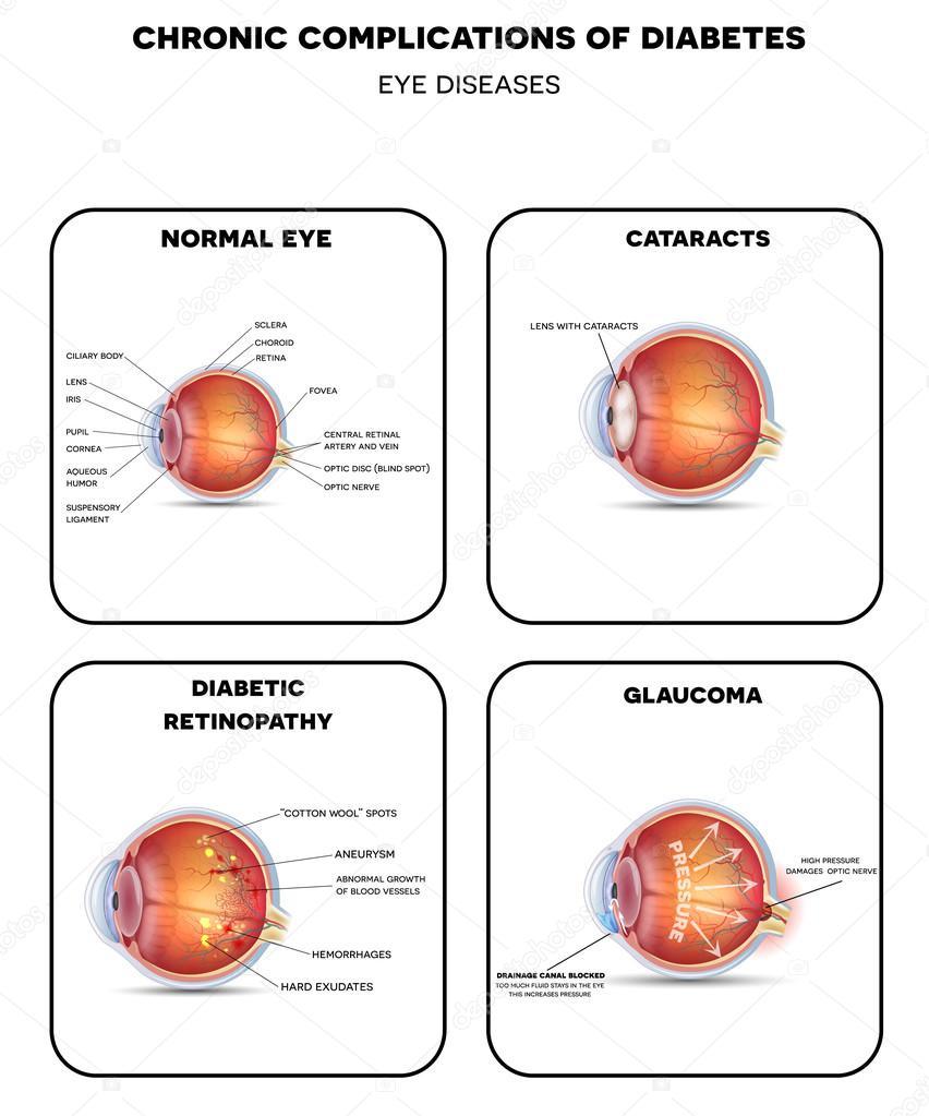 Diabetic Eye Diseases diagram — Stock Vector © megija #92204984