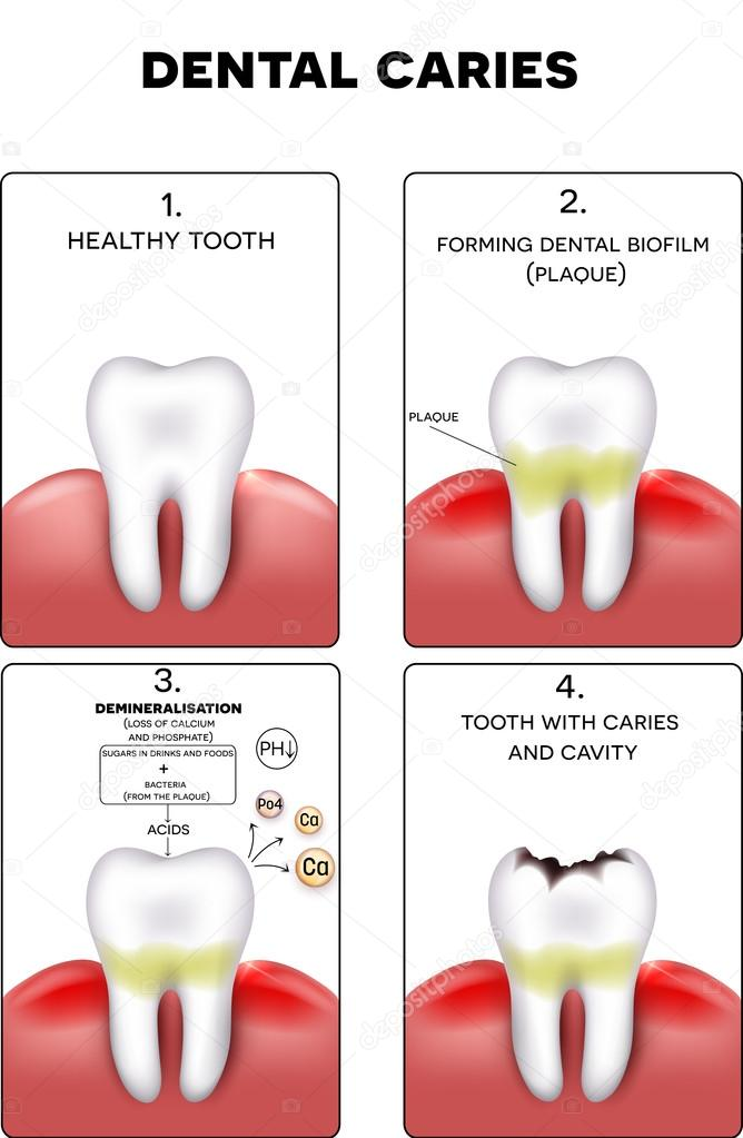 Dental caries formation