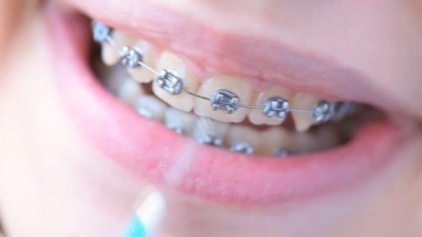 Mädchen in geschweiften Klammern reinigt ihre Zähne mit Interdentalbürste für den Halterungssystem