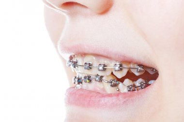 dental steel braces on teeth close up
