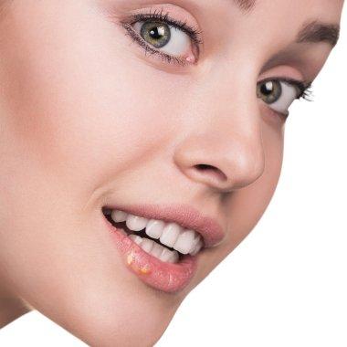 Beautiful lips infected herpes virus