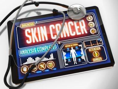 Skin Cancer on the Display of Medical Tablet.