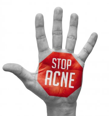 Stop Acne Sign Painted, Open Hand Raised.