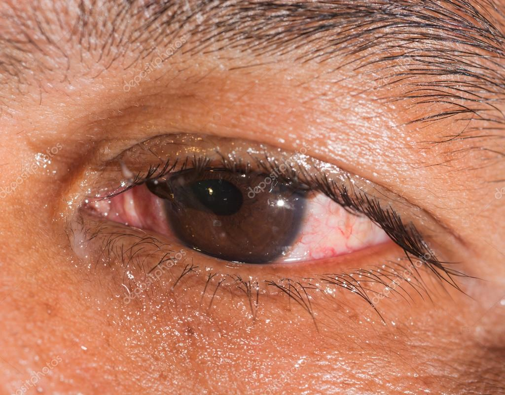 ruptured globe eye injuries - HD 1024×801