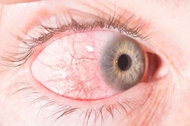 episcleritis at eye exam