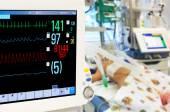 Patients monitor in neonatal ICU