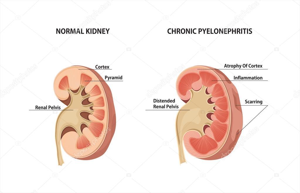 Normal Kidney And Chronic Pyelonephritis Stock Vector