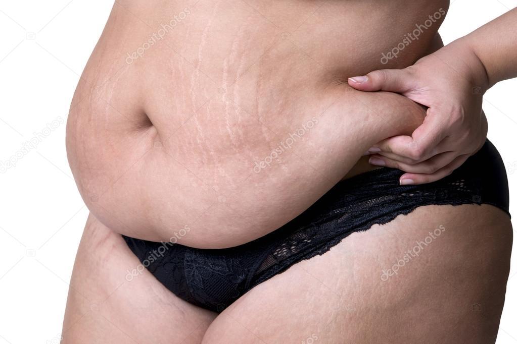 fett på magen kvinna