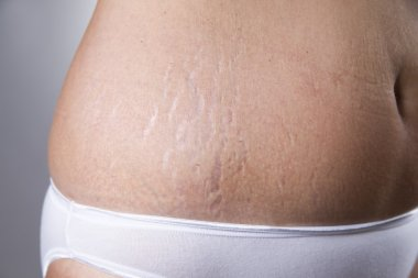 Female belly with stretch marks closeup