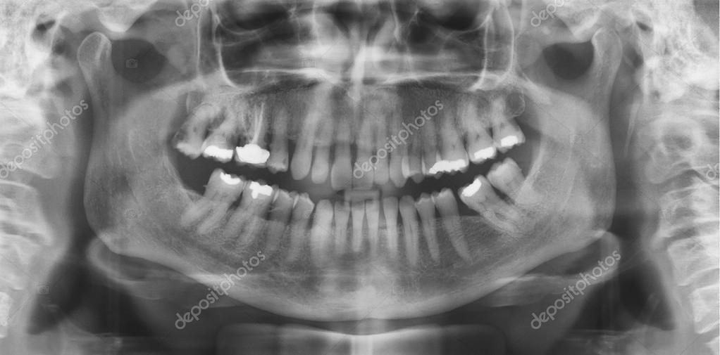 radiografía panorámica dental — Foto de stock © alfonsodetomas #96854754