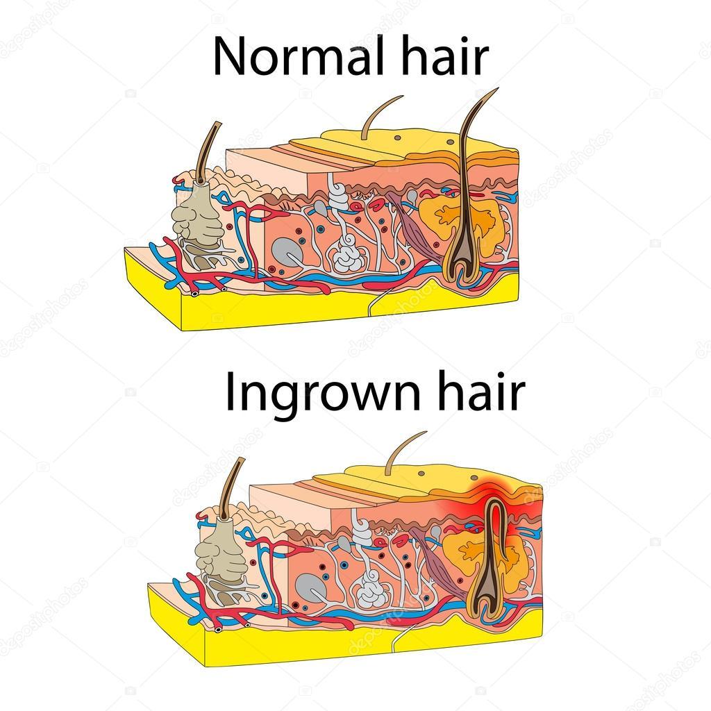 Skin with ingrown hair stock vector marynamelnyk 62272045 skin with ingrown hair stock vector pooptronica Choice Image