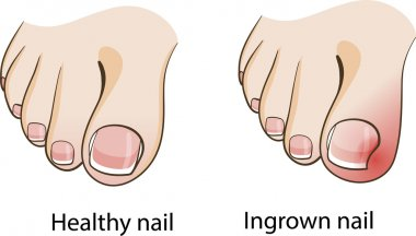 Ingrown nail