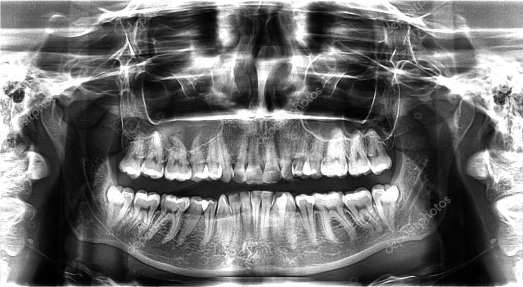 Radiografía Panorámica Dental — Foto de stock © belchonock #104969468