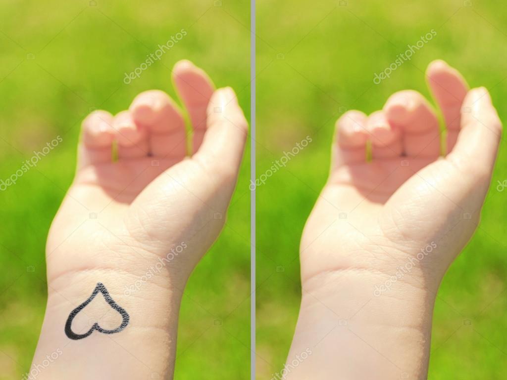 Tatouage Sur Main Femme Concept Laser Tattoo Removal Photographie
