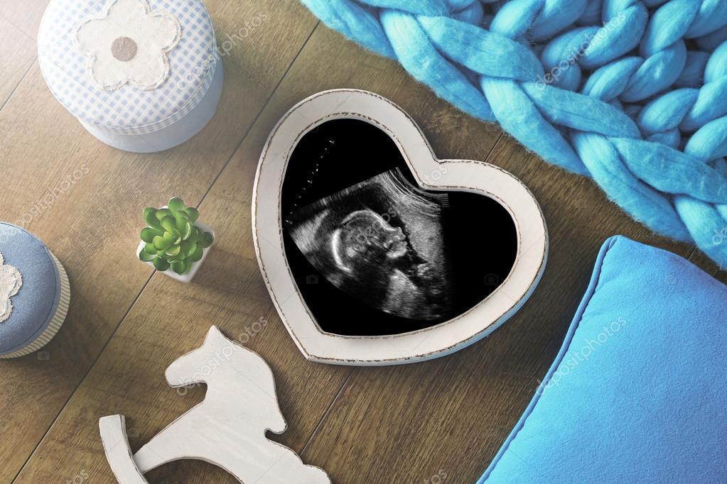 Marco de fotos con la exploración del ultrasonido del bebé — Foto de ...