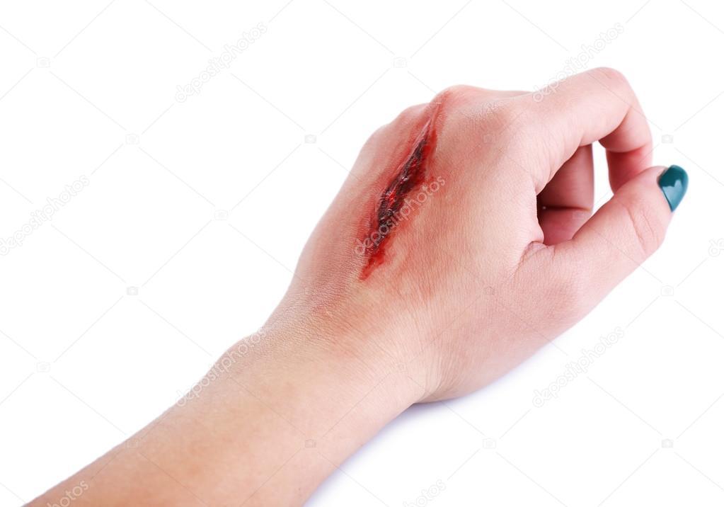 wound on traduzione in italiano esempi inglese