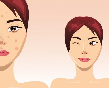 Acne treatment with beautiful woman face, vector illustration