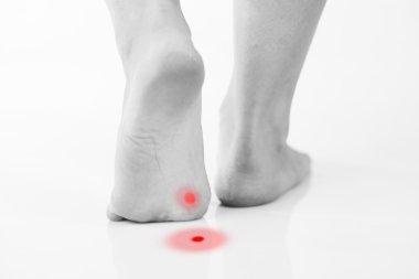Callus or plantar wart under foot