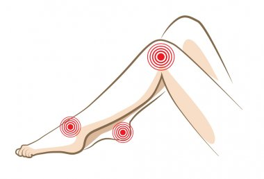 Concept of woman pain in legs, vector