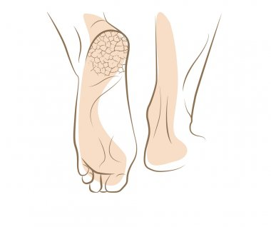 Concept of foot fungus with cracked heel, vector