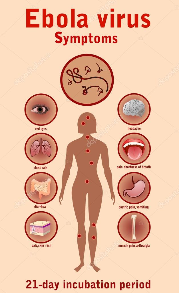 the symptoms diagnosis and therapy for ebola virus Medical tests, doctor questions, and related signs or symptoms for ebola virus infection  fluid replacement therapy  related to symptoms and diagnosis.
