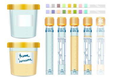 Urinalysis Yellow Cap Tubes Set, empty, filled, frozen and dipis