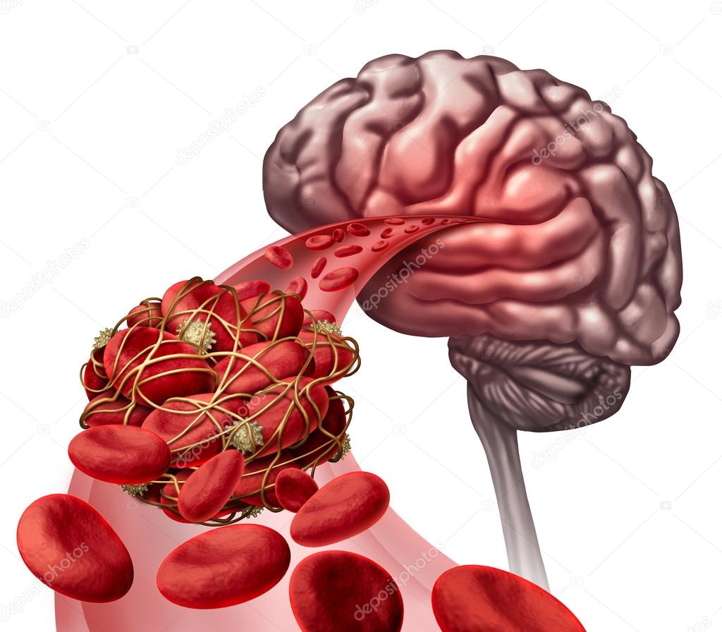 Gehirn-Blutgerinnsel — Stockfoto © lightsource #106619020