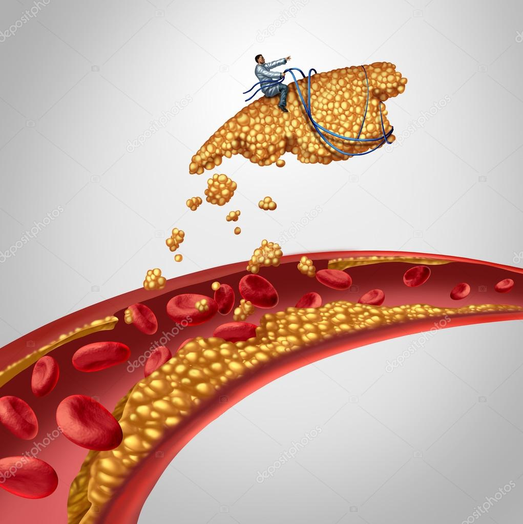 Arterial Plaque Surgery - Stock Photo © lightsource #74144587