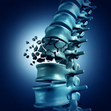 Spinal Fracture medical