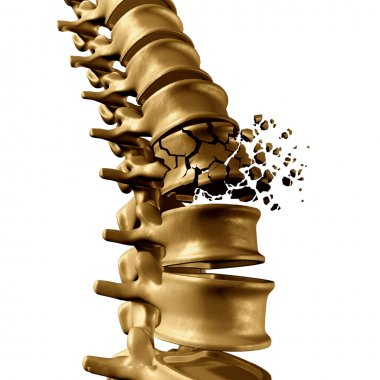 Spine Fracture Concept