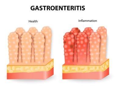 Gastroenteritis or infectious diarrhea