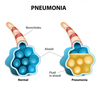 Pneumonia. Illustration shows normal and infected alveoli.